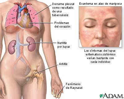 lupus.jpg (400×320)